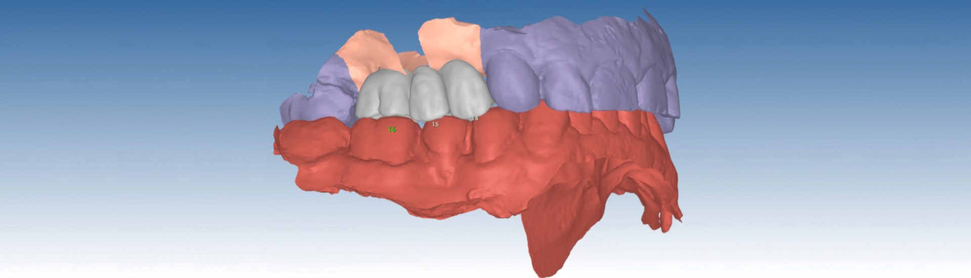 realizzazioni-digitali-laboratorio-odontotecnico-santini