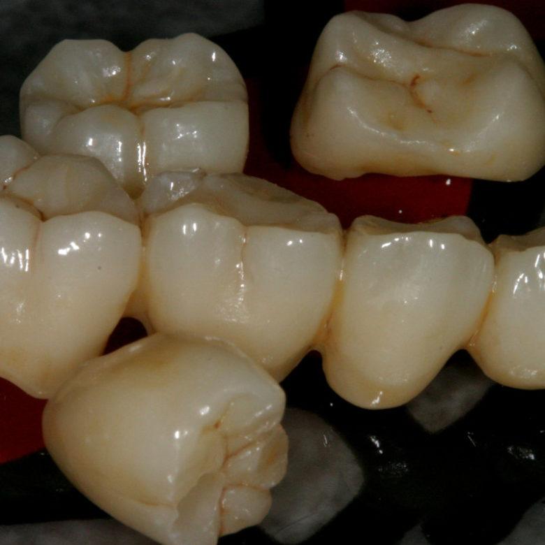 Protesi-Laboratorio-Odontotecnico-Santini